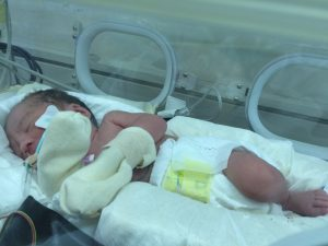 NICU生活1日目,大学病院の新生児特定集中治療室(NICU)に入院